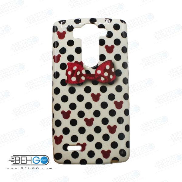 قاب طرح دار گوشی الجی جی 3 مینی LG G3 mini طرح میکی موس case For LG G3 mini